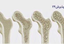 شایع ترین علائم کمبود کلسیم چیست؟ و انواع درمان آن