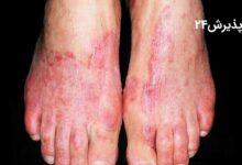 قارچ پا یا بیماری پای ورزشکار چیست و چطور درمان میشود؟
