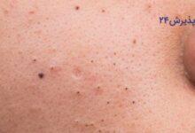 چگونه جوش های سرسیاه روی پوست را از بین ببریم؟