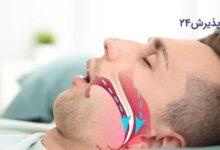 آپنه خواب یا تنگی نفس در خواب   علائم، علل، عوارض، نحوه پیشگیری، تشخیص و انواع راههای درمان آن