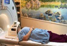 انواع تومور مغزی | علائم و راه های درمان آن