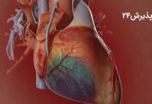 درمان گرفتگی عروق قلب با طب سنتی و بدون جراحی