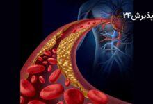 گرفتگی رگ های قلب | علائم، راه های تشخیص و انواع درمان آن
