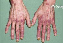 بیماری لوپوس   علائم راه های درمان و پیشگیری از آن