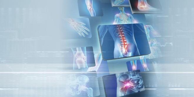 عکس استخوان و مفاصل